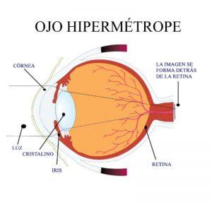 ojo hipermetrope