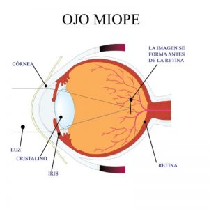 ojo miope