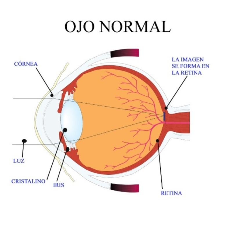 87c038f002 18 Jul Los 4 defectos refractivos más comunes en un examen visual
