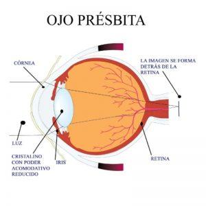 ojo presbita